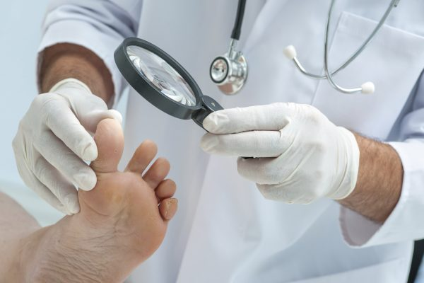 انواع مختلف عفونت های قارچی + علائم، تشخیص و درمان آنها