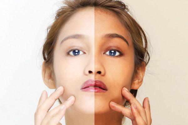 سفید کردن پوست با روش های طبیعی و خانگی