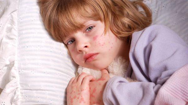 مشکلات پوستی کودکان