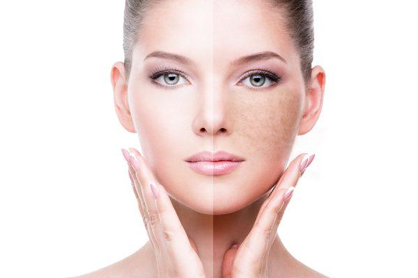 لک و تیرگی پوست؛ علل، علائم و نحوه درمان لک و تیرگی پوست