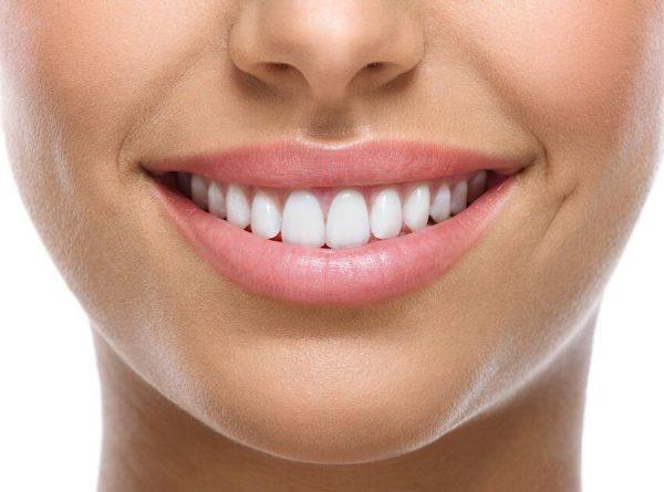 لمینت سرامیکی بدون تراش و تفاوت آن با لمینت کامپوزیتی دندان