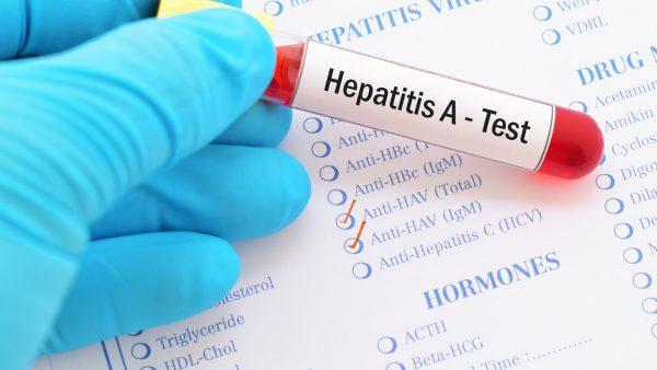 هپاتیت های ویروسی