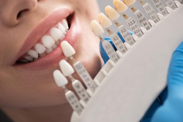 طراحی لبخند با لمینت دندان