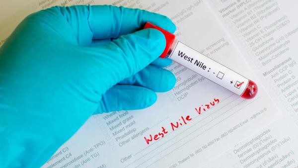 ویروس نیل غربی