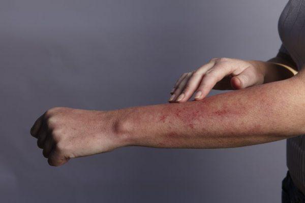 بیماری ویروس نیل غربی؛ از علل و خطرات تا تشخیص و درمان