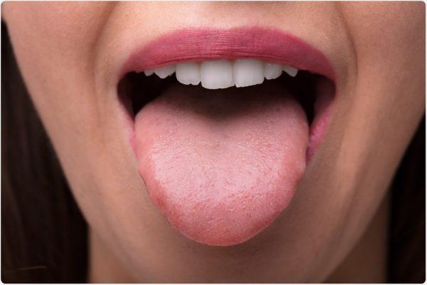 سرطان زبان
