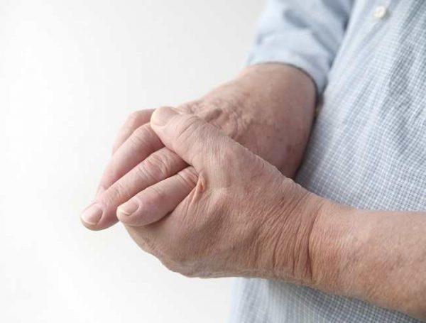انگشت ماشه ای یا تریگر فینگر چیست؟ + درمان خانگی آن