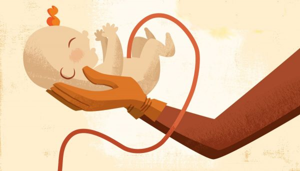 خون بند ناف نوزاد