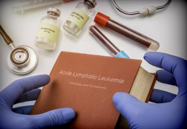 لوسمی لنفوسیتی حاد؛ علائم، علل، تشخیص و درمان آن