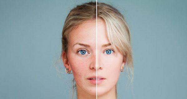 روشن کردن پوست با روش های پزشکی و درمان های خانگی