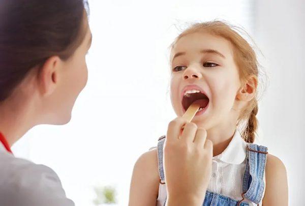 تونسیلیت یا التهاب لوزه ها