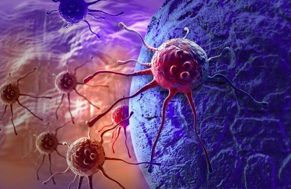 دلایل مبتلا شدن افراد به سرطان مغز و روش های درمان آن