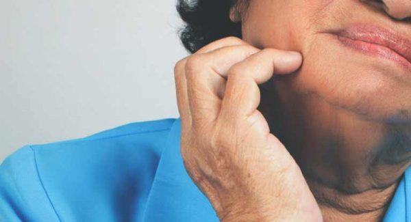 زونا یا تبخال زوستر چیست؟ عفونت، علائم و درمان زونا