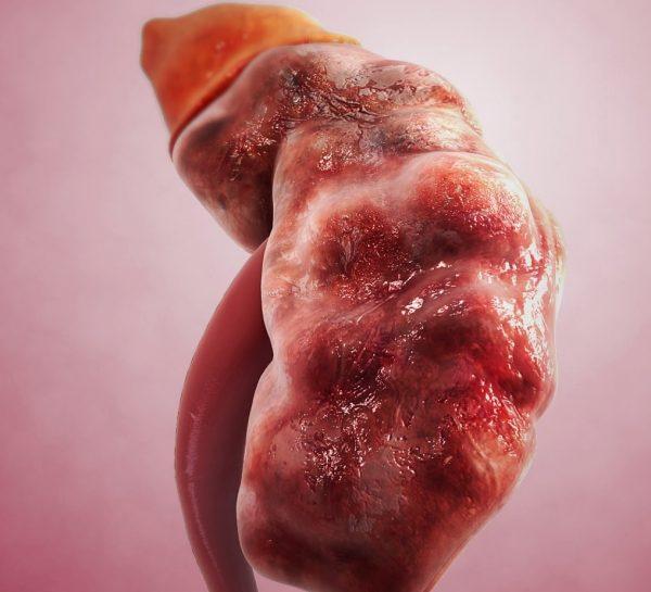 بیماری نفروپاتی IgA