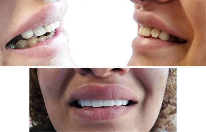 کامپوزیت دندان بهتر است یا اسنپ آن اسمایل؟