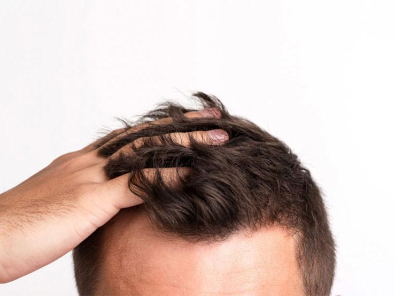 همه چیز در مورد کاشت مو و ابرو