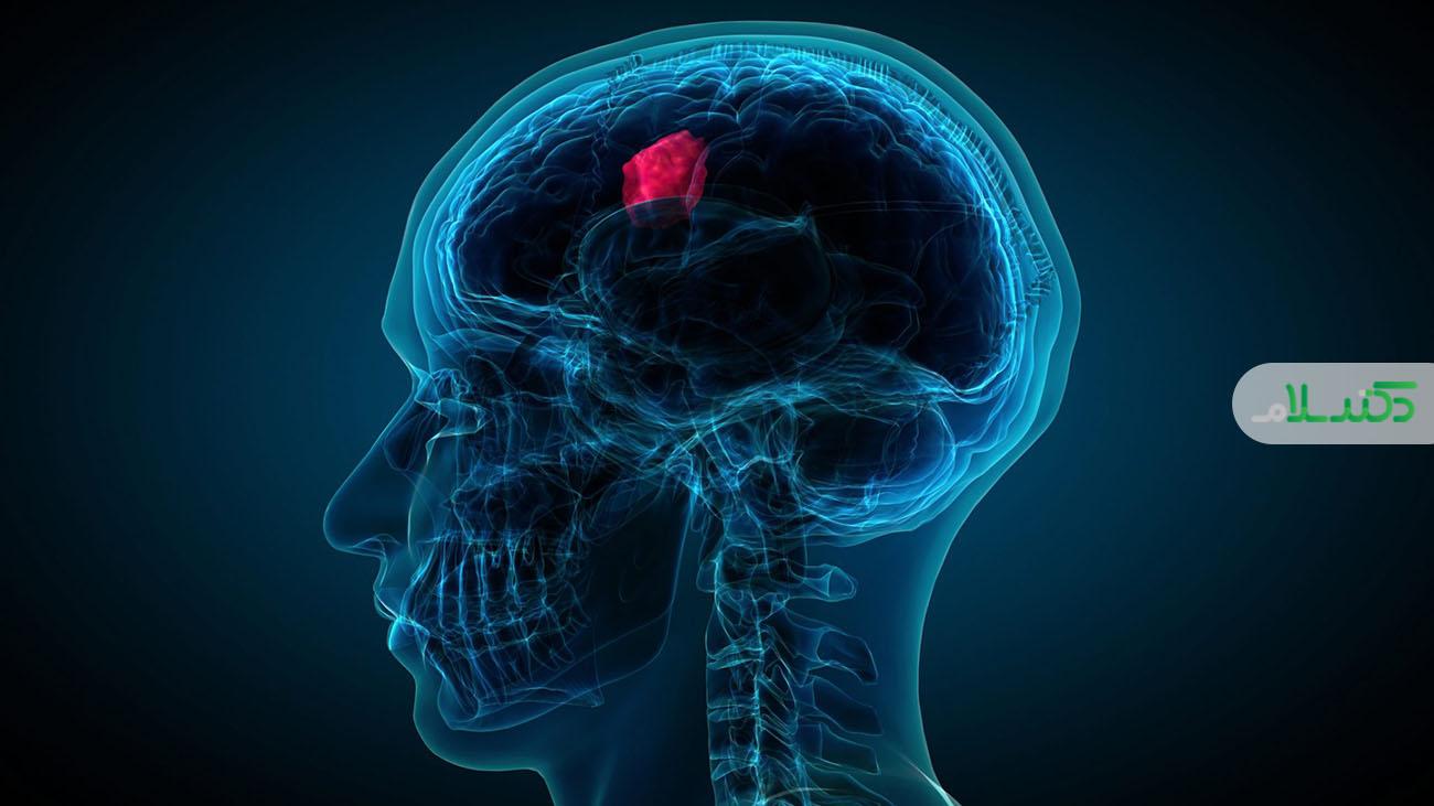 انواع تومورهای مغزی و نخاعی در بزرگسالان