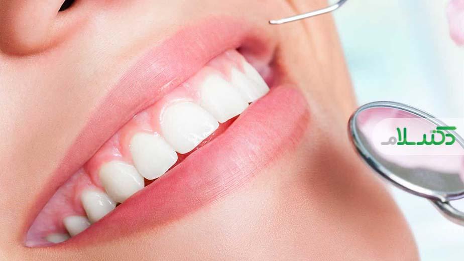 وارنیش فلوراید برای جلوگیری از پوسیدگی دندان ها