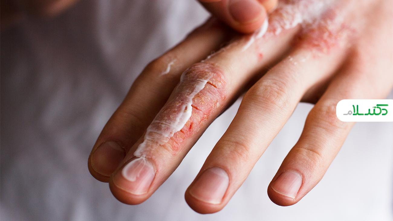 دلایل ترک خوردگی پوست و راه های درمان آن