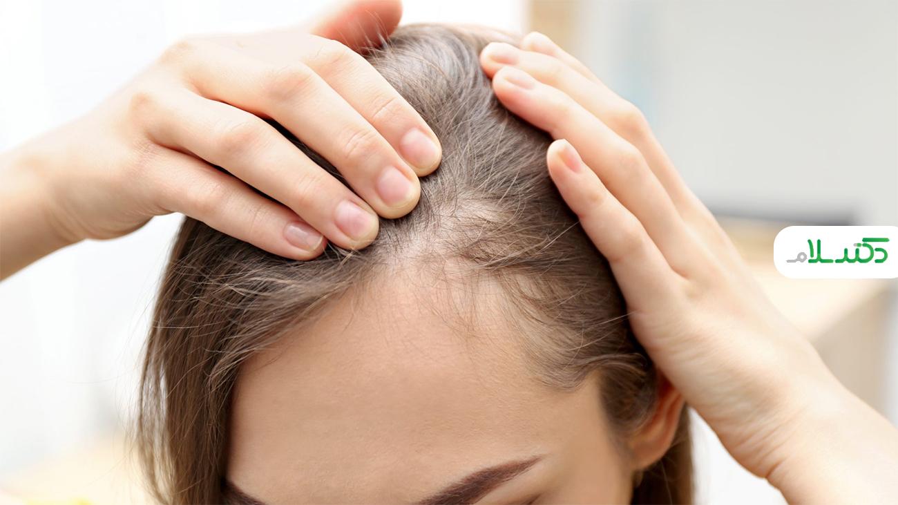 درمان های خانگی برای جلوگیری از ریزش مو +عکس