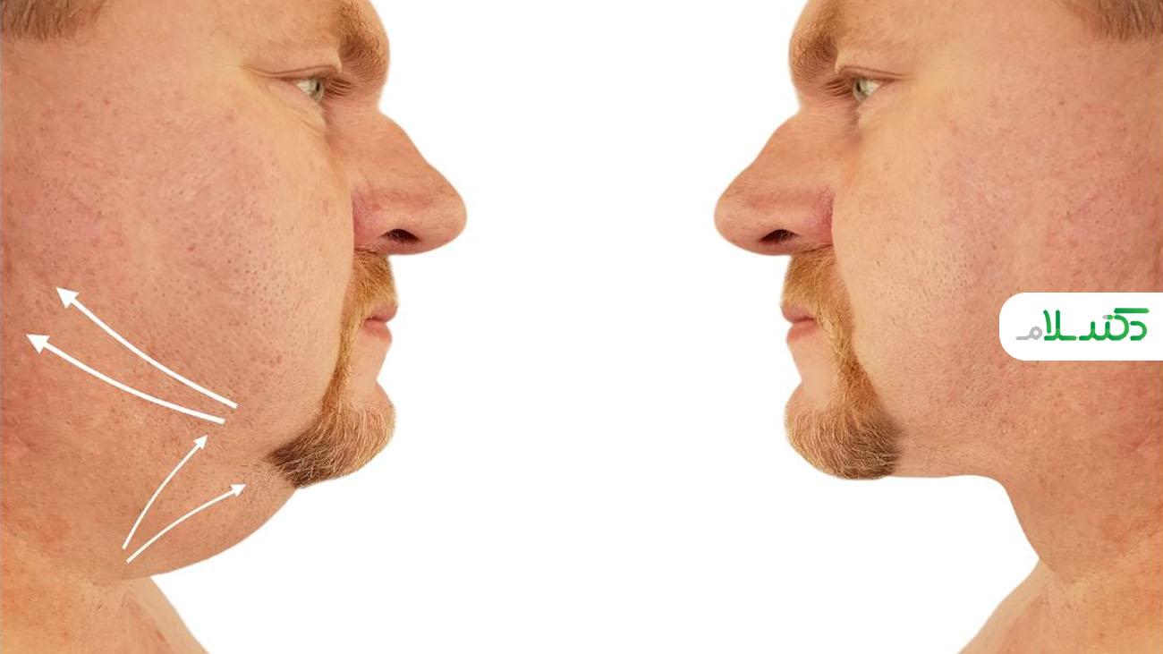 راهکارهای طلایی برای از بین بردن چربی و چاقی صورت