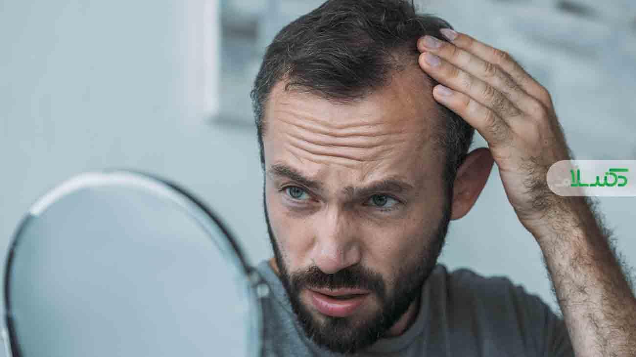 کاشت مو؛ بهترین روش برای درمان طاسی سر