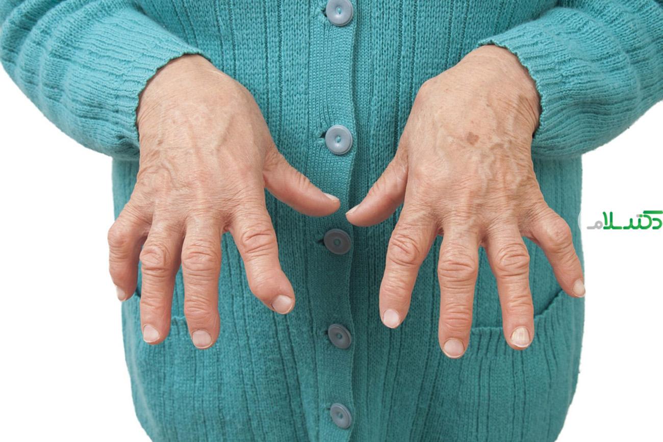 آرتریت روماتوئید ؛ بیماری خود ایمنی