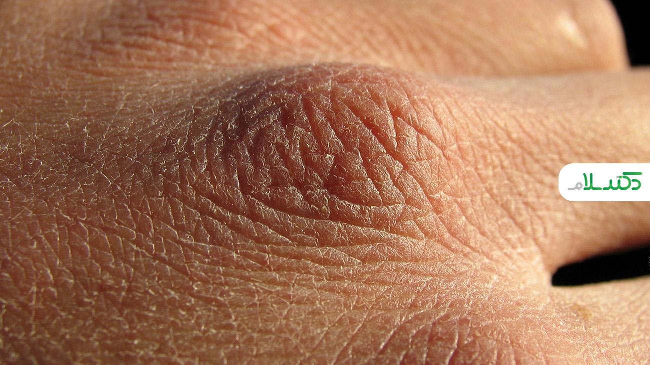راه های از بین بردن ترک های پوستی