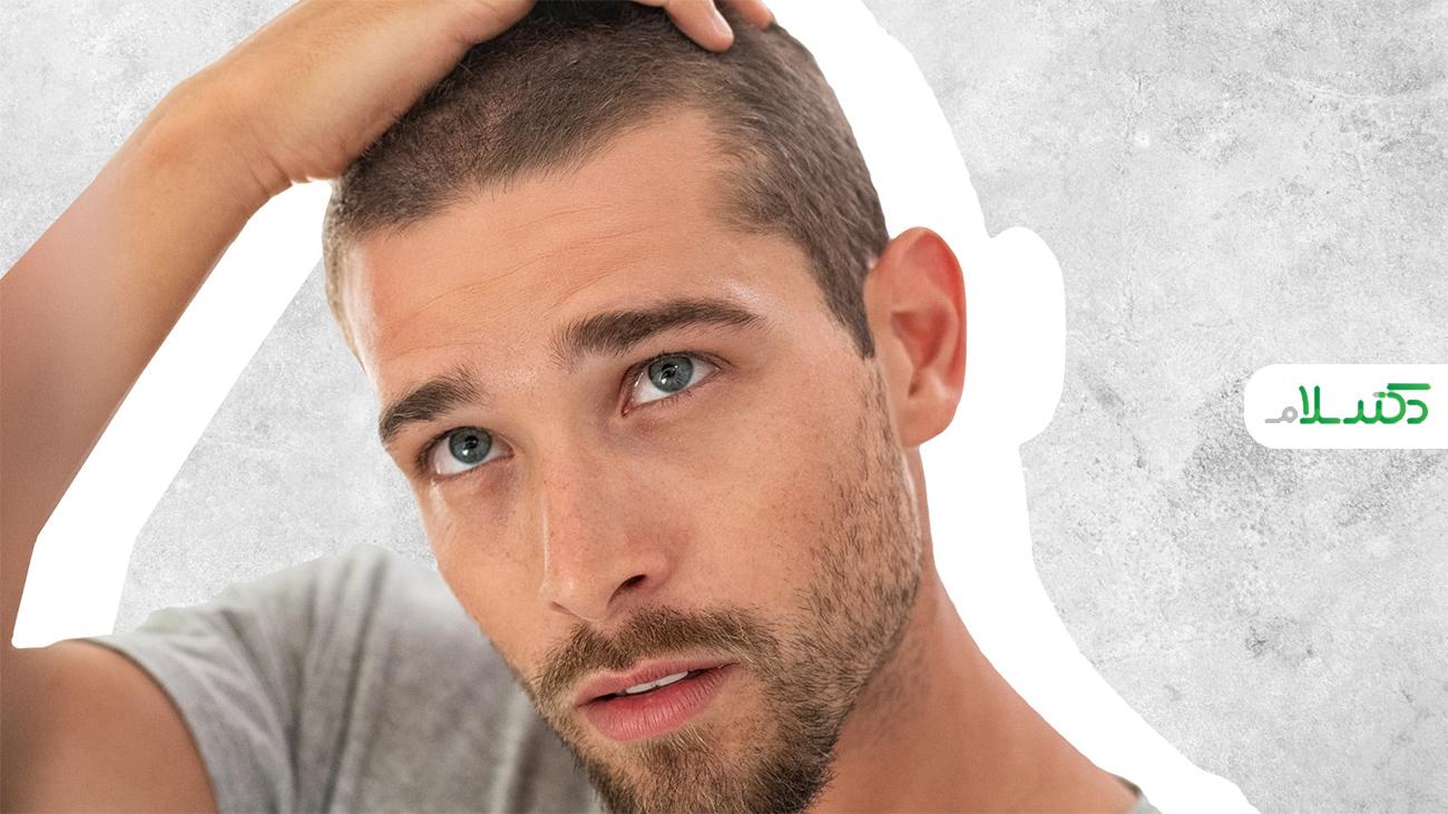 ریزش مو ، یکی از علائم طولانی مدت کرونا