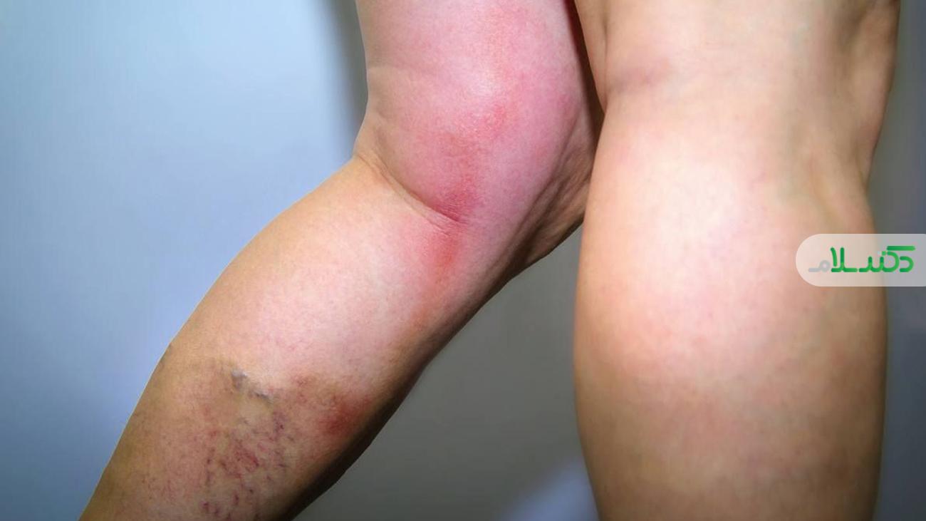 علت لخته شدن خون و درمان های طبیعی برای آن