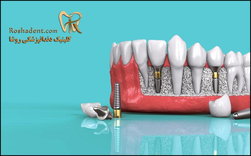 هزینه ایمپلنت دندان در تهران (قیمت ایمپلنت سال 1400)