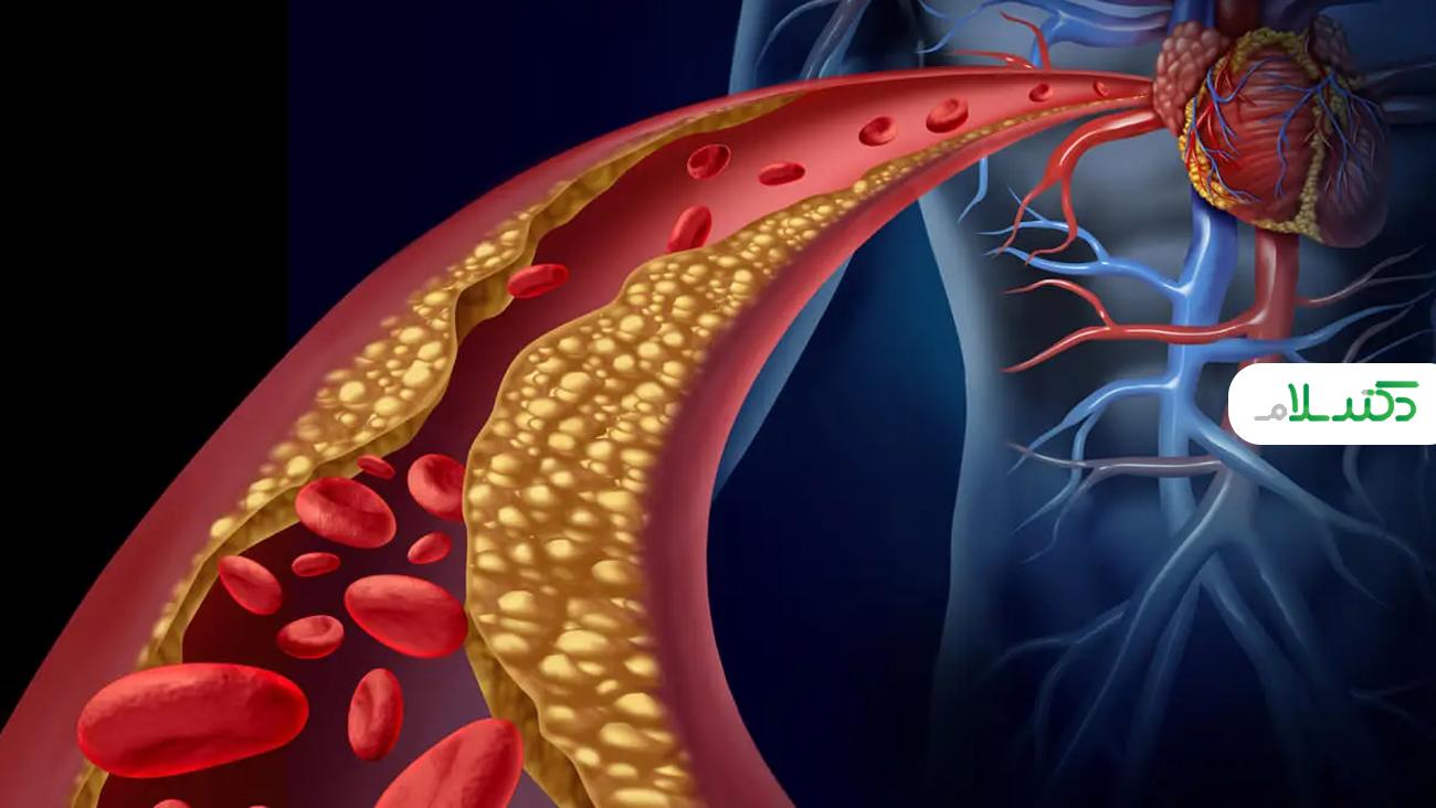 علائم کلسترول بالا و راه های کاهش آن