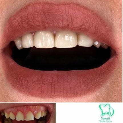 دکتر مهدی سمیعی دندانپزشک، جراح و ایمپلنتولوژیست +بیوگرافی و آدرس مطب