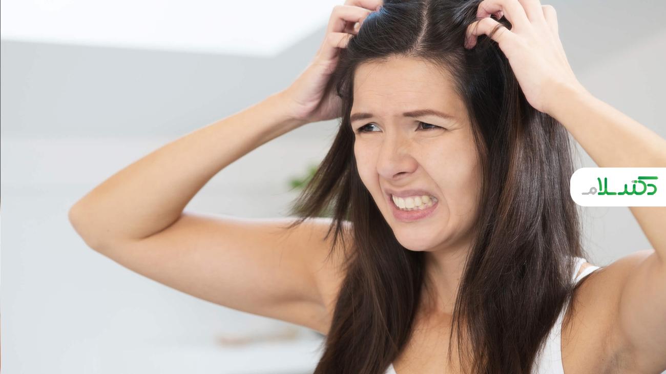 درمان های خانگی و پزشکی برای شوره سر