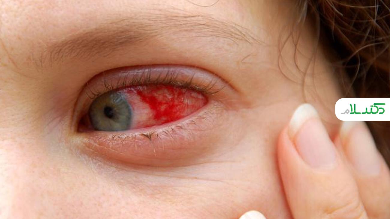 چگونه می توان از شر قرمزی چشم خلاص شد؟