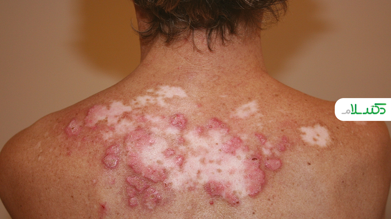 دلایل به وجود آمدن بیماری لوپوس چیست؟