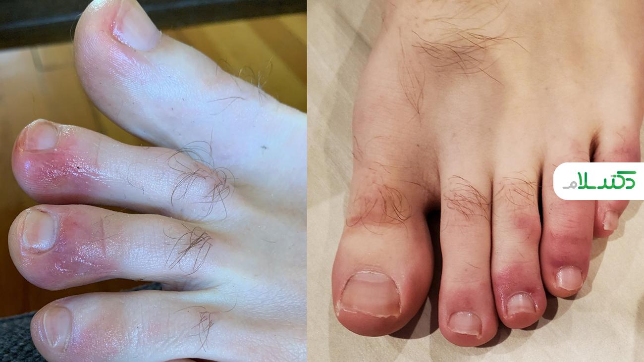 مشکلات پوستی بعد از ابتلا به کرونا