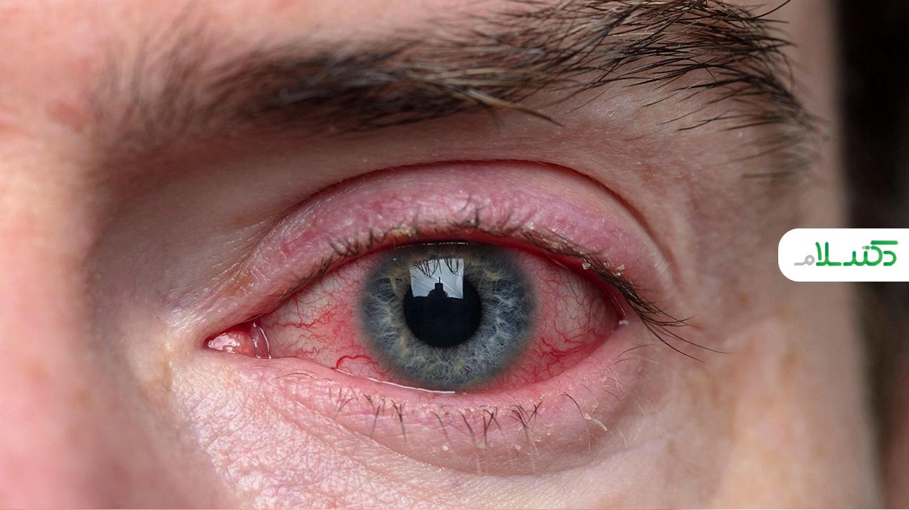 دلایل به وجود آمدن حلقه قرمز اطراف چشم چیست؟