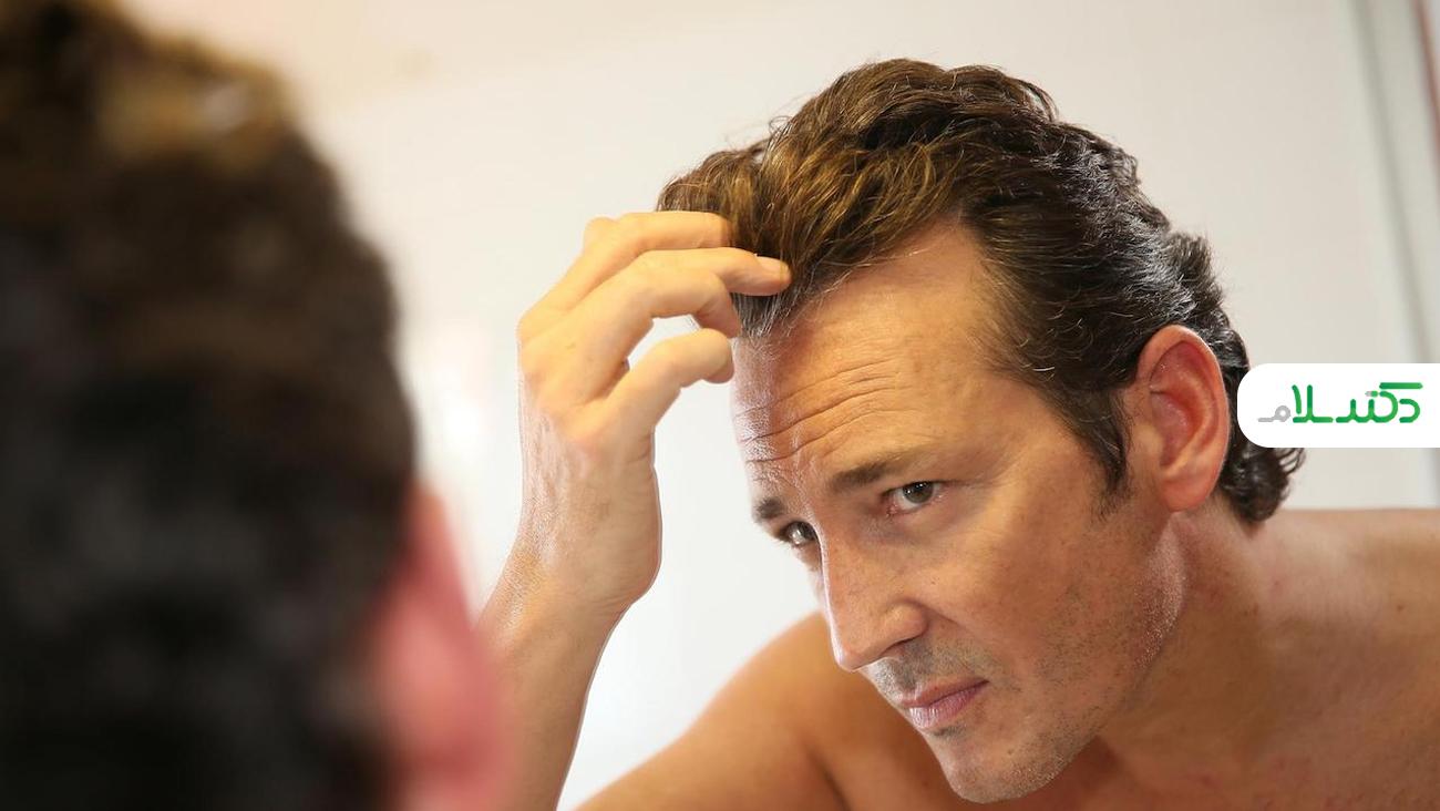 دلایل ریزش مو در آقایان