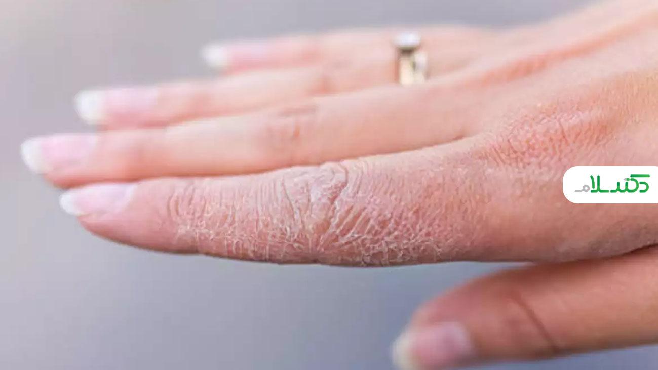 چه دلایلی باعث کنده شدن پوست دست ها می شود؟