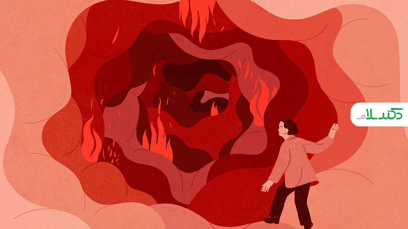 چه ارتباطی بین بیماری کرون و خستگی وجود دارد؟