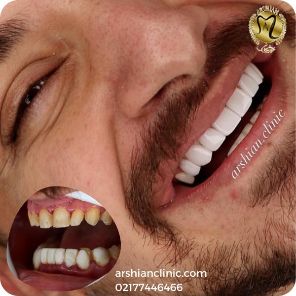 کامپوزیت دندان | هزینه کامپوزیت دندان چقدر است؟