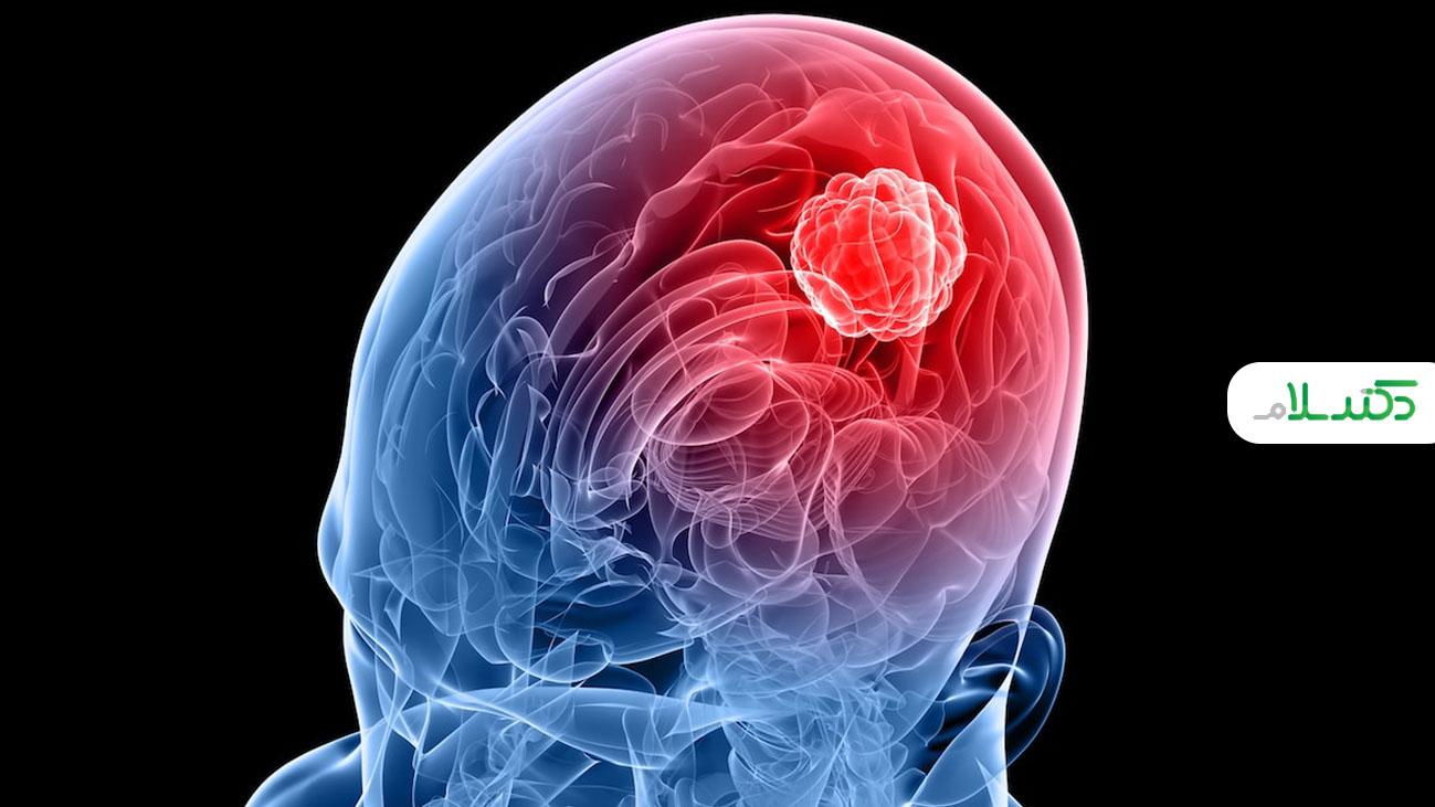 انواع مختلف تومور چیست؟