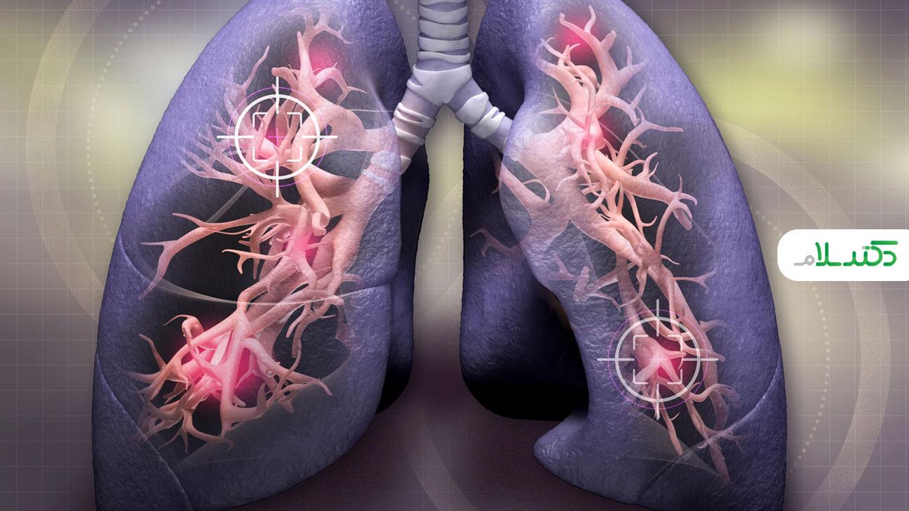 همه چیز در مورد بیماری مزمن انسدادی ریه و آلرژی