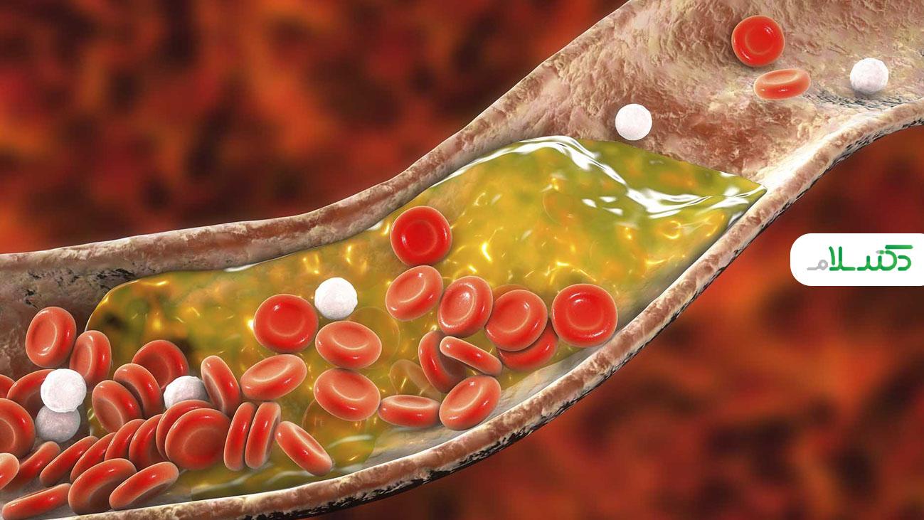 نوشیدنی هایی که به کنترل کلسترول کمک می کنند