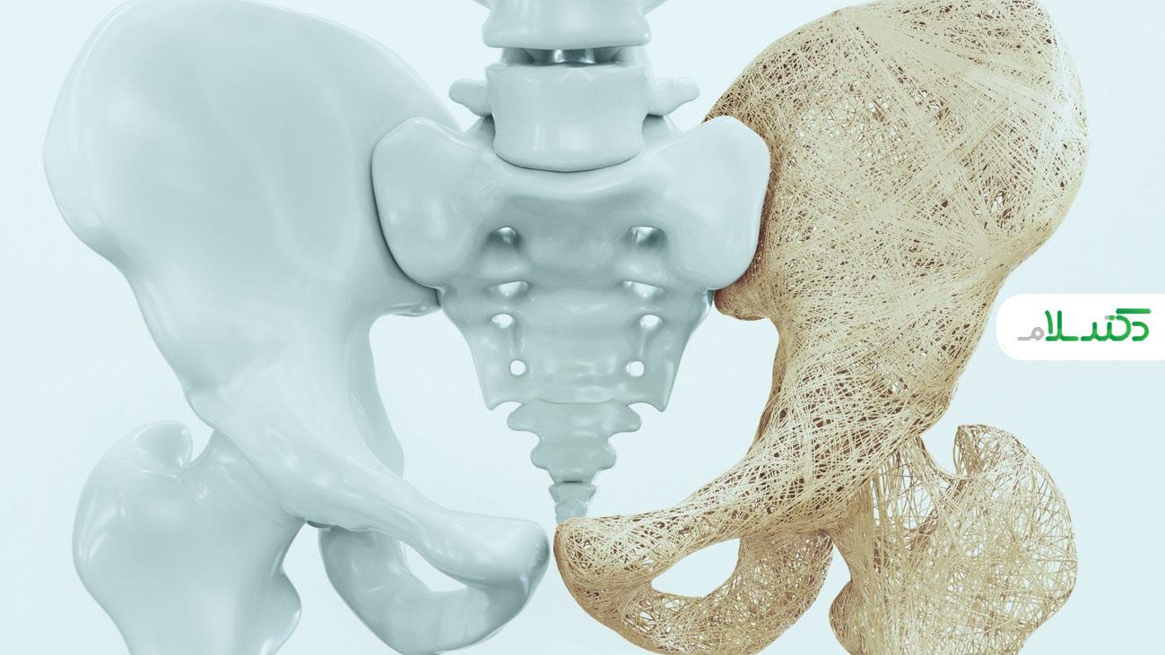 علل و عوامل خطر بروز پوکی استخوان